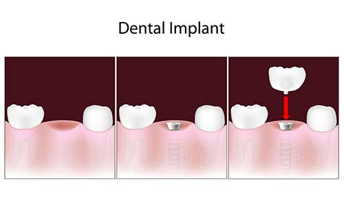 Implant Dentist in Hamilton Township