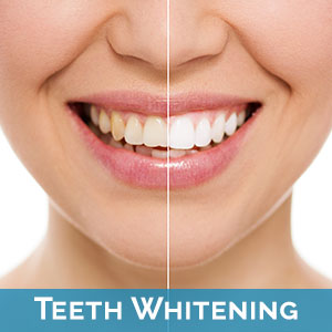 Teeth Whitening in Hamilton Township