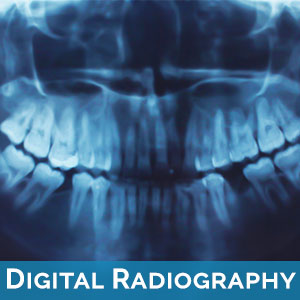 Digital Radiography in Hamilton Township
