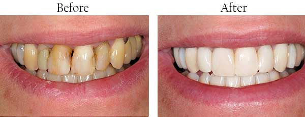 Hamilton Township Before and After Dental Implants