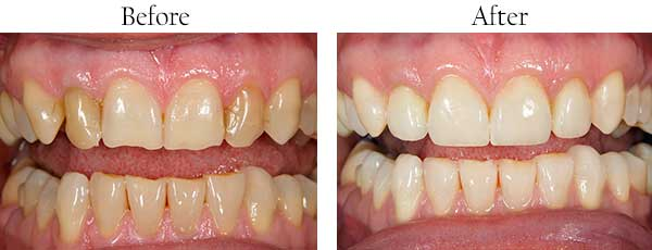 Lawrenceville Before and After Invisalign
